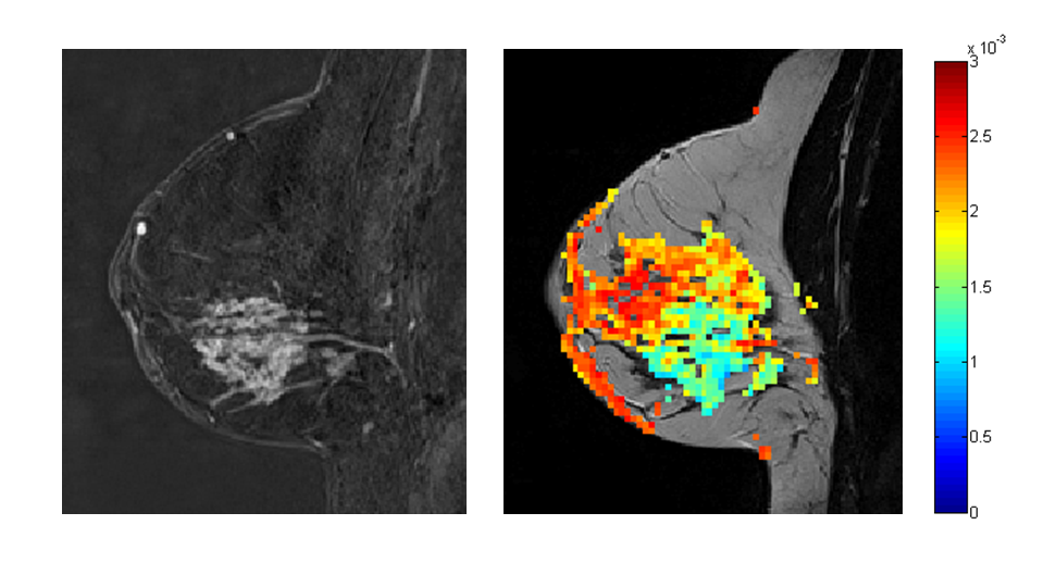 Figure 1: Post-contrast T1 weighted MR image (Right) and apparent diffusion coefficient (ADC) parametric map overlaid on a T2 weighted image (left) from a 35 years old woman diagnosed with invasive ductal carcinoma.