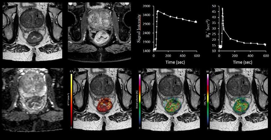 MRI software image. MRI photo